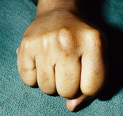 Boxer's Fracture and Knuckle