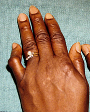 Crooked Ring Finger Palmistry