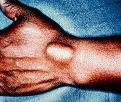 dorsal-ganglion-cyst