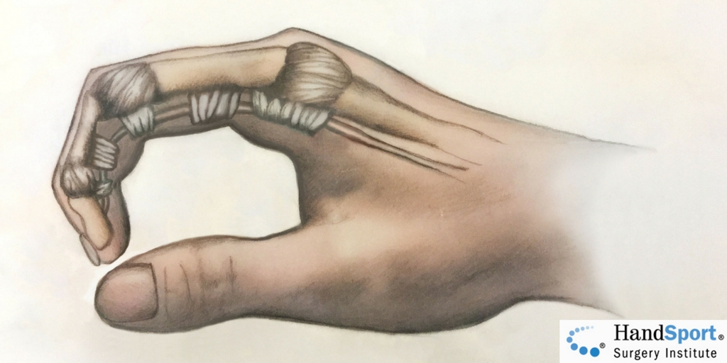 Pulleys Of Hand : Flexor tendon pulley system injury