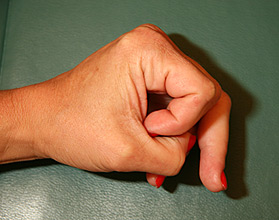 flexor-tendon-rupture