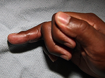 jersey-finger