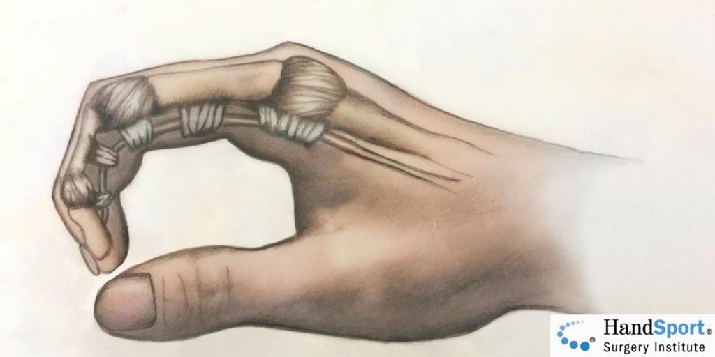trigger finger tenosynovitis dr pruzansky handsport.us